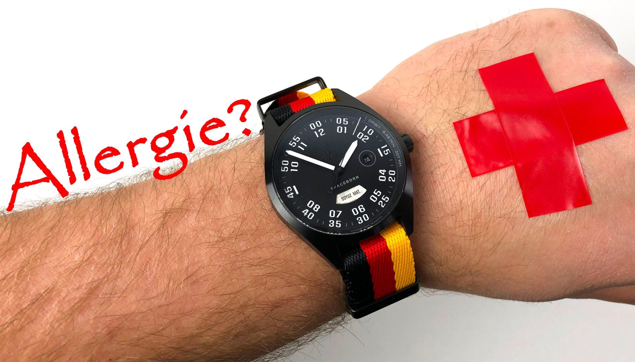 Uhren Allergie Nickel Titan Hilfe Lösungen